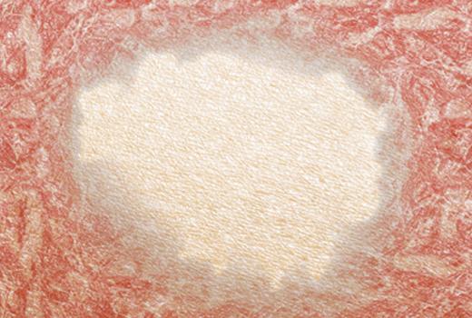 Novartis dermatology cosentyx